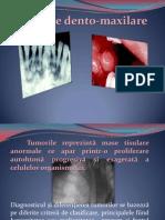 tumori dento-maxilare