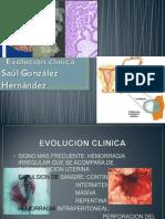 Evolución clínica EXPOSICION DE GINECOLOGIA EXPO LUNES
