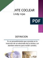 IMPLANTE COCLEAR TECNICA,.pptx