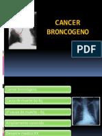 Cancer Broncogeno