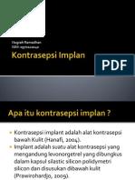Kontrasepsi Implant