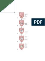 Atherosclerosis Pathophysiology from BRUNNER & SUDDARTHS'S MED SURG