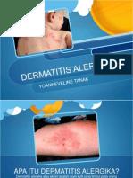 Dermatitis Alergika