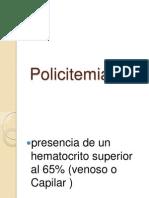 Policitemiaok