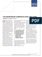 The Reinforced Composite Post and Core