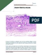 Cancer Infiltrado Vesicula Biliar