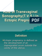 Role of TVS in Ectopic Pregnancy
