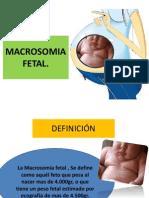 Macrosomia Er
