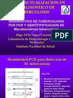 07 Caceres Diagnostico TB PCR Genotipificacion Mycobacterium Tuberculosis