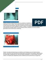 tumores-mediastinales