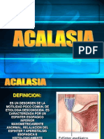 Clase Acalasia