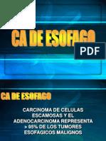 Clase CA Esofago