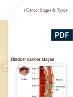 Bladder Cancer Stages and Types