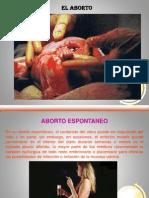 elaborto-090707081326-phpapp01