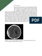 Diagnosis Banding Hematom Subdural