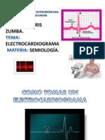 11.02.12... Pia Semiologia... Electrocardiograma.