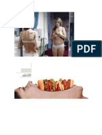 Docdesordes alimenticios