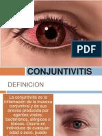 Tema 20 - Conjuntivitis