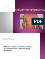 Dermatitis Seborreica