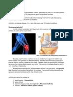 Arthritis With GAGs