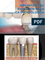 Implantes y Su Evolucion en La Practica Odontologica