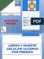 ULCERAS POR PRESIÓN - GRUPO ODONTOBLASTOS