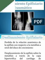 Deslizamiento epifisiario traumatico.pptx