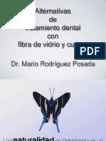 Alternativas TX Dental Fibra de Vidrio