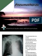 tension pneumothoraks dan tatalaksananya