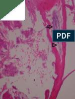 Figura 3. Pele bovino. Observa-se hiperqueratose ortoceratótica associada a presença de ácaro livre em meio a debris ceratinosos.  HE (Obj. 40x).