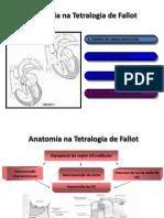 Anatomia Na Tetralogia de Fallot