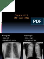 Torace (radiologie,imagistica)