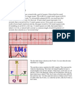 Interpreting ECG