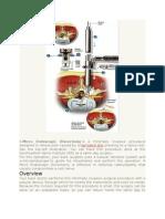 disektomiiii