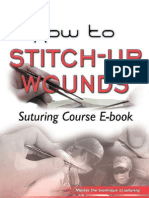 How to Stitch Up Wounds