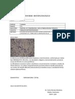 Ayle Fibrosarcoma Costal