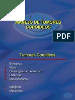 tumores coroideos