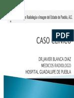 CASO Y  DESCRIPCION DE TECNICAS APLICABLES DE RMN EN PATOLOGIA INFILTRATIVA MEDULAR.