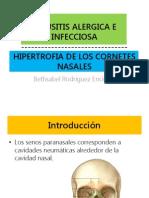 Sinusitis Alergica e Infecciosa