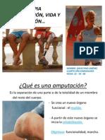 Amputaciones Protesis 30pp