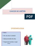 Cancer de Ureter