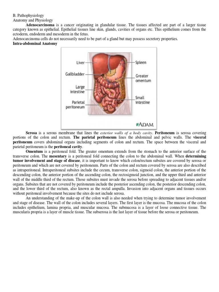 Jen-Adenocarcinoma Sigmoid Colon