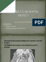 VENTRICULAR SEPTAL DEFECT.pptx