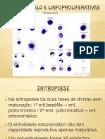 DOENÇAS MIELO E LINFOPROLIFERATIVAS
