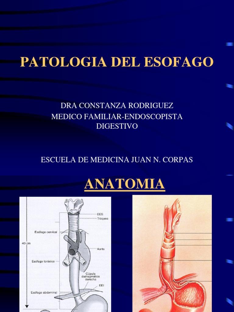 patologiadelesofagoii-1233774410356717-1