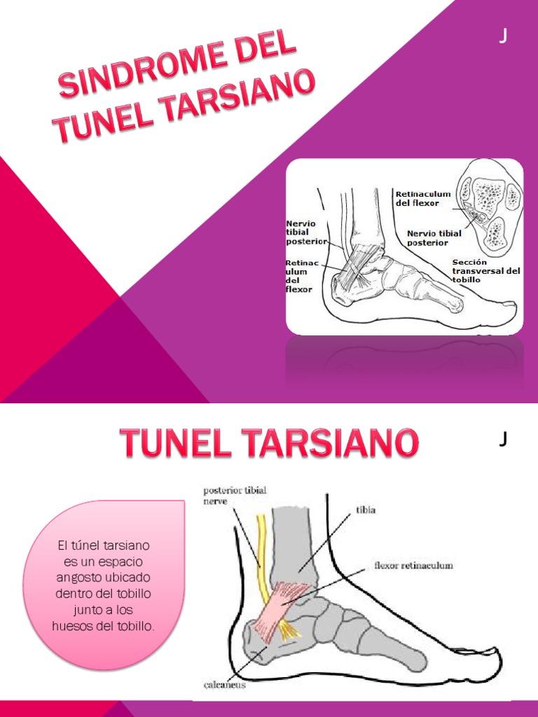 Excelente Nervios Del Tobillo Foto - Imágenes de Anatomía Humana ...