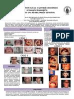 Prostodoncia Parcial Removible Como Medio
