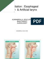 Rehabilitation Esophageal Speech & Artificial Larynx