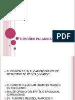 7.- TUMORES PULMONARES