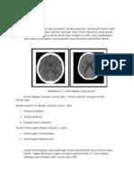 serebrovaskuler radiologi